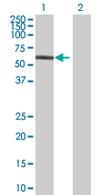 Western blot - Anti-NPL4 antibody (ab68020)