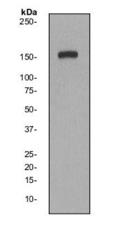 Western blot - Phospholipase C gamma 1 antibody [EP2522Y] (ab68147)