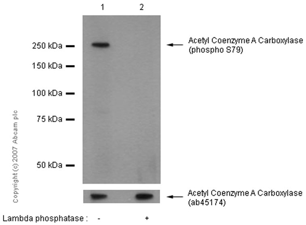 Western blot - Anti-Acetyl Coenzyme A Carboxylase (phospho S79) antibody [EP1885Y] (ab68191)