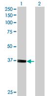 Western blot - Anti-Vinexin antibody (ab68222)