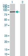 Western blot - Anti-FBXO30 antibody (ab68224)