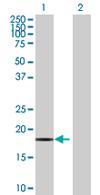 Western blot - Anti-MRPL13 antibody (ab68239)