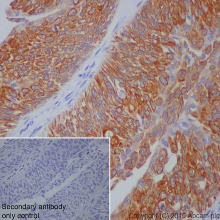 Immunohistochemistry (Formalin/PFA-fixed paraffin-embedded sections) - Anti-Cytokeratin 7 antibody [EPR1619Y] - Cytoskeleton Marker (ab68459)