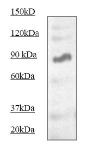 Western blot - Anti-STAT5 antibody (ab68465)