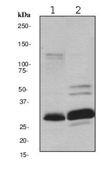 Western blot - Anti-Heme Oxygenase 1 antibody [EPR1390Y] (ab68477)