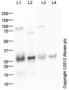 Western blot - Anti-Neutrophil Elastase antibody (ab68672)