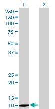 Western blot - Anti-Galectin 13 antibody (ab68707)