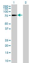 Western blot - Anti-HP1BP3 antibody (ab68719)