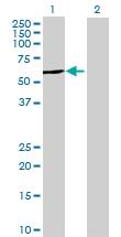 Western blot - Anti-TBC1D22B antibody (ab68741)