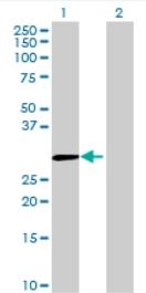 Western blot - Anti-MBNL3 antibody (ab68759)