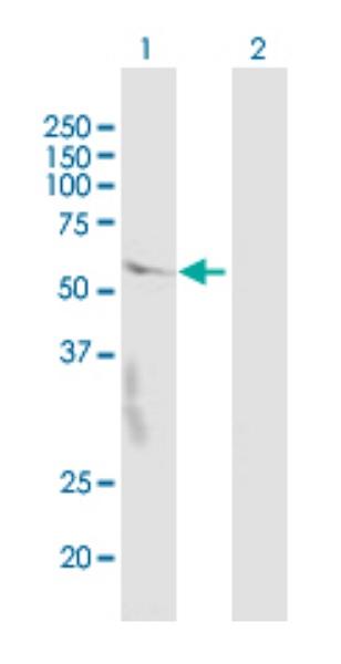 Western blot - Anti-CRBN antibody (ab68763)
