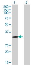 Western blot - Anti-GIYD2 antibody (ab68807)