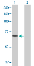 Western blot - Anti-Choline dehydrogenase antibody (ab68815)