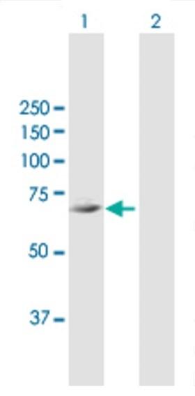 Western blot - Anti-FLJ21963 antibody (ab68927)