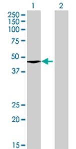 Western blot - Anti-ABHD12 antibody (ab68949)