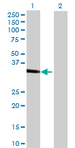 Western blot - Anti-Carbonic anhydrase X antibody (ab69143)