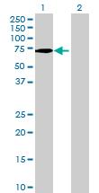 Western blot - Anti-VANGL1 antibody (ab69227)