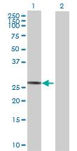 Western blot - Anti-SPATA9 antibody (ab69259)