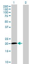 Western blot - Anti-MED9 antibody (ab69323)