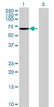 Western blot - Anti-FAM82A2 antibody (ab69337)