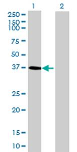 Western blot - DHRS7  antibody (ab69348)