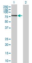 Western blot - Anti-RNF220 antibody (ab69357)