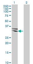 Western blot - Anti-RBM11 antibody (ab69358)