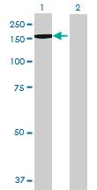 Western blot - Anti-BRPF3 antibody (ab69410)