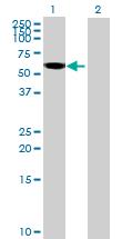 Western blot - Anti-Rabex5 antibody (ab69437)
