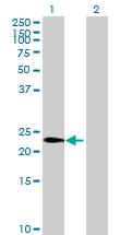 Western blot - Anti-LOC389289 antibody (ab69490)