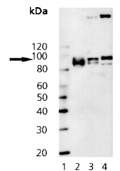 Western blot - Anti-Insulin Receptor beta antibody [C18C4] (ab69508)