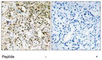 Immunohistochemistry (Formalin/PFA-fixed paraffin-embedded sections) - Anti-PPHLN1 antibody (ab69569)