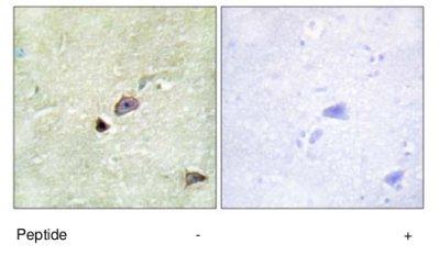 Immunohistochemistry (Formalin/PFA-fixed paraffin-embedded sections) - Anti-TRIM59 antibody (ab69639)