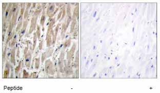Immunohistochemistry (Formalin/PFA-fixed paraffin-embedded sections) - Anti-Cytochrome p450 2J2 antibody (ab69651)