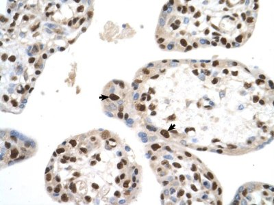 Immunohistochemistry (Formalin/PFA-fixed paraffin-embedded sections) - Anti-KMT3A / HYPB / HIF-1 antibody (ab69836)