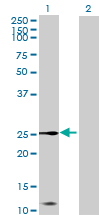 Western blot - Anti-CXX1 antibody (ab69850)
