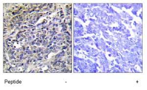Immunohistochemistry (Formalin/PFA-fixed paraffin-embedded sections) - Anti-Granzyme K antibody (ab69884)