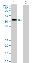 Western blot - Anti-SPOCK2 antibody (ab69952)