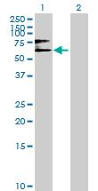 Western blot - Anti-GGT5 antibody (ab69966)