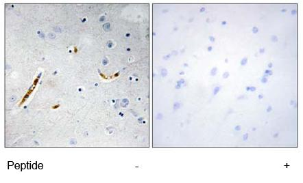 Immunohistochemistry (Formalin/PFA-fixed paraffin-embedded sections) - Anti-TCF3 / E2A antibody (ab69999)
