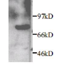 Western blot - Anti-MMP2 antibody (ab7298)