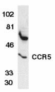 Western blot - Anti-CCR5 antibody (ab7346)