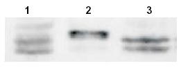 Western blot - Anti-Sprouty 4 antibody (ab7513)