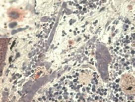 Immunohistochemistry - Anti-HLA G antibody [MEM-G/1] (ab7759)