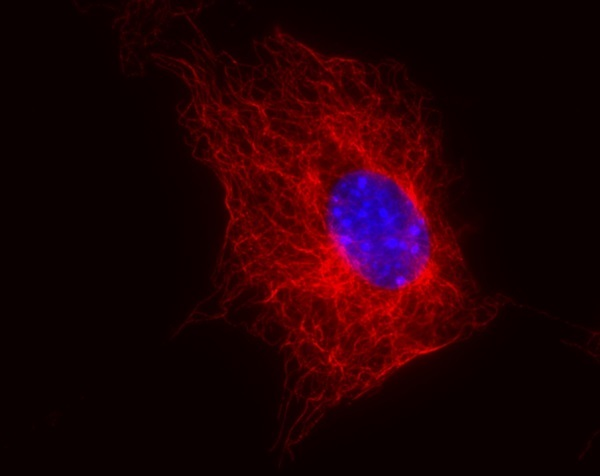 Immunocytochemistry/ Immunofluorescence - Anti-beta Tubulin antibody [TU-06] (ab7792)