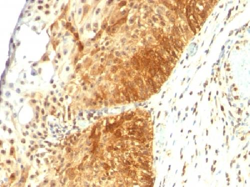 Immunohistochemistry (Formalin/PFA-fixed paraffin-embedded sections) - Anti-Cytokeratin 14 antibody [LL002] (ab7800)