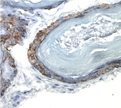 Immunohistochemistry (Frozen sections) - Anti-Cytokeratin 14 antibody [LL002] (ab7800)