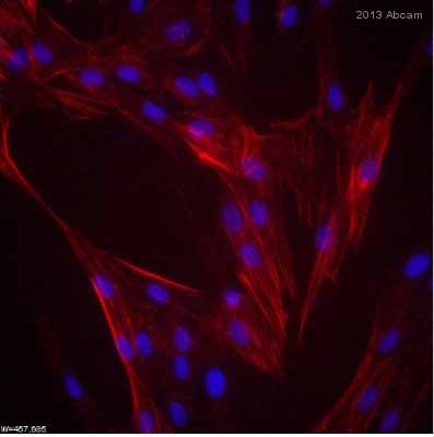 Immunocytochemistry/ Immunofluorescence - Anti-alpha smooth muscle Actin antibody [1A4] (ab7817)