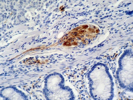 Immunohistochemistry (Formalin/PFA-fixed paraffin-embedded sections) - Anti-p21 antibody [WA-1] (ab7903)