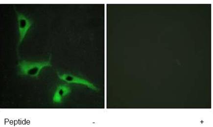 Immunocytochemistry/ Immunofluorescence - Anti-TM4SF3 antibody (ab70007)